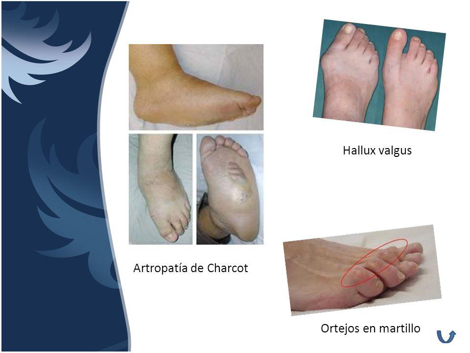 Artropatía de Charcot Hallux valgus Ortejos en martillo