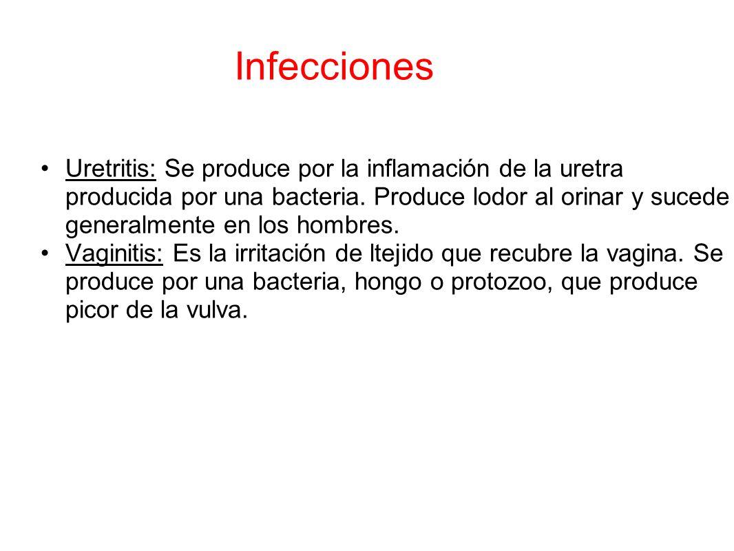 Infecciones Uretritis: Se produce por la inflamación de la uretra producida por una bacteria. Produce lodor al orinar y sucede generalmente en los hom