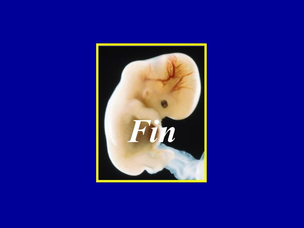 3. No disyunción de los cromosomas sexuales. a. Síndrome de Turner (XO). b. Trisomía X (XXX). c. Síndrome de Klinefelter (XXY). d. Machos XXY. 4. Repr