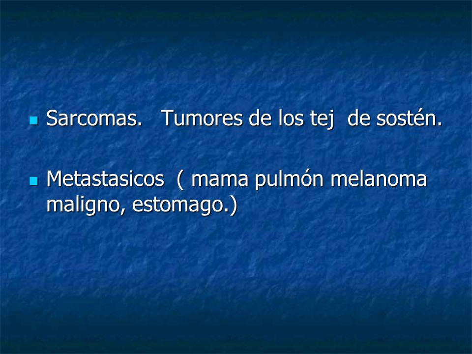 Sarcomas. Tumores de los tej de sostén. Sarcomas. Tumores de los tej de sostén. Metastasicos ( mama pulmón melanoma maligno, estomago.) Metastasicos (