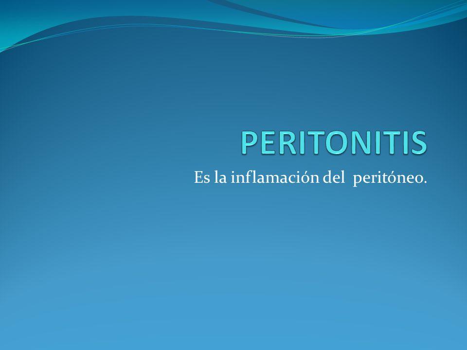 Es la inflamación del peritóneo.