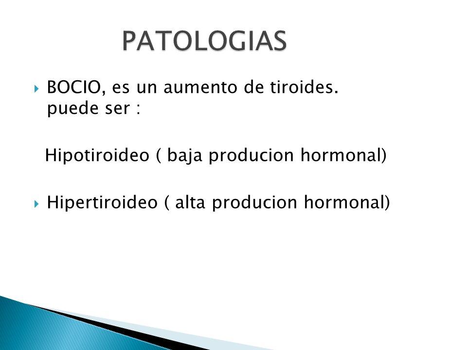 BOCIO, es un aumento de tiroides. puede ser : Hipotiroideo ( baja producion hormonal) Hipertiroideo ( alta producion hormonal)