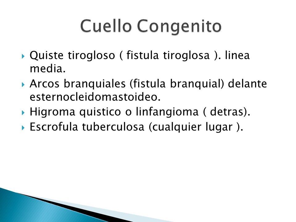 Quiste tirogloso ( fistula tiroglosa ). linea media. Arcos branquiales (fistula branquial) delante esternocleidomastoideo. Higroma quistico o linfangi