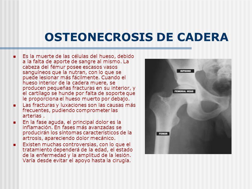 OSTEONECROSIS DE CADERA Es la muerte de las células del hueso, debido a la falta de aporte de sangre al mismo. La cabeza del fémur posee escasos vasos