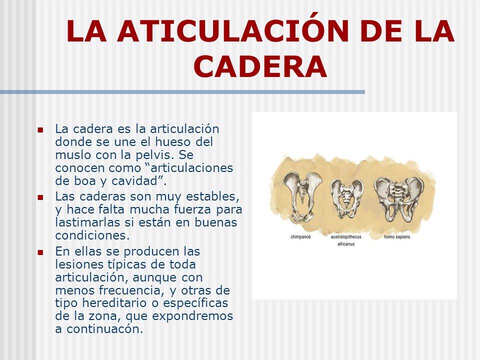 LA ATICULACIÓN DE LA CADERA La cadera es la articulación donde se une el hueso del muslo con la pelvis. Se conocen como articulaciones de boa y cavida