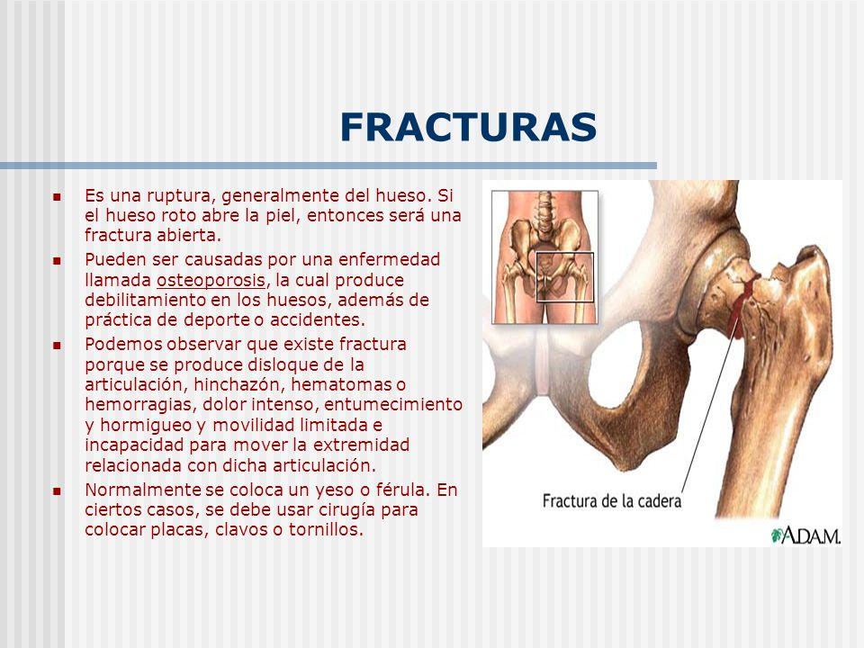 FRACTURAS Es una ruptura, generalmente del hueso. Si el hueso roto abre la piel, entonces será una fractura abierta. Pueden ser causadas por una enfer