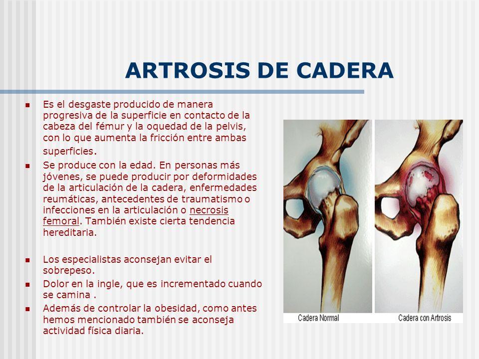ARTROSIS DE CADERA Es el desgaste producido de manera progresiva de la superficie en contacto de la cabeza del fémur y la oquedad de la pelvis, con lo