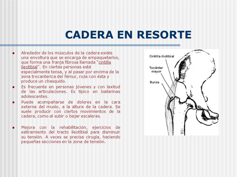 CADERA EN RESORTE Alrededor de los músculos de la cadera existe una envoltura que se encarga de empaquetarlos, que forma una franja fibrosa llamada ci