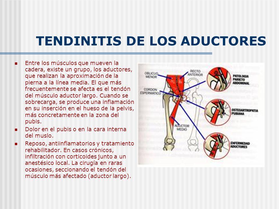 TENDINITIS DE LOS ADUCTORES Entre los músculos que mueven la cadera, existe un grupo, los aductores, que realizan la aproximación de la pierna a la lí