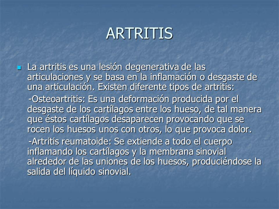 ARTRITIS La artritis es una lesión degenerativa de las articulaciones y se basa en la inflamación o desgaste de una articulación. Existen diferente ti