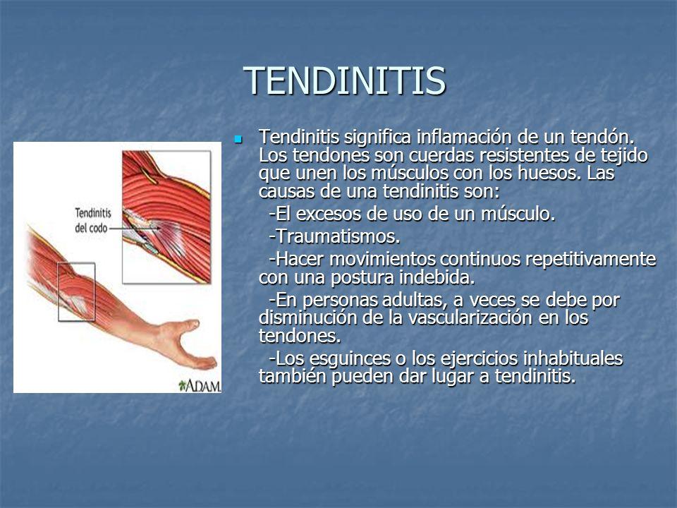 TENDINITIS TENDINITIS Tendinitis significa inflamación de un tendón. Los tendones son cuerdas resistentes de tejido que unen los músculos con los hues