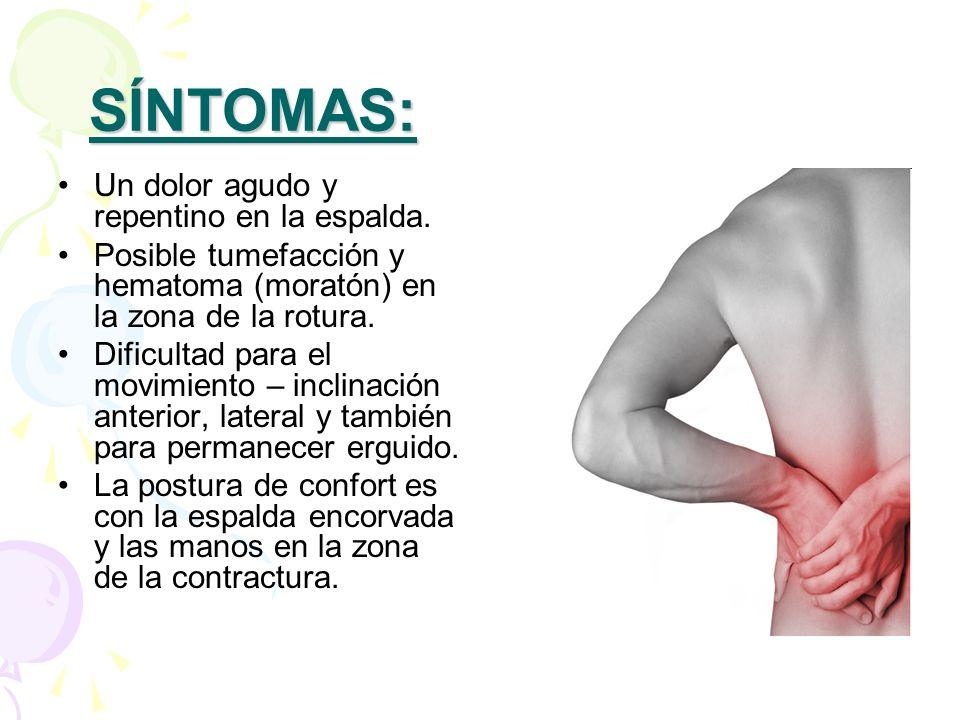 SÍNTOMAS: Un dolor agudo y repentino en la espalda. Posible tumefacción y hematoma (moratón) en la zona de la rotura. Dificultad para el movimiento –