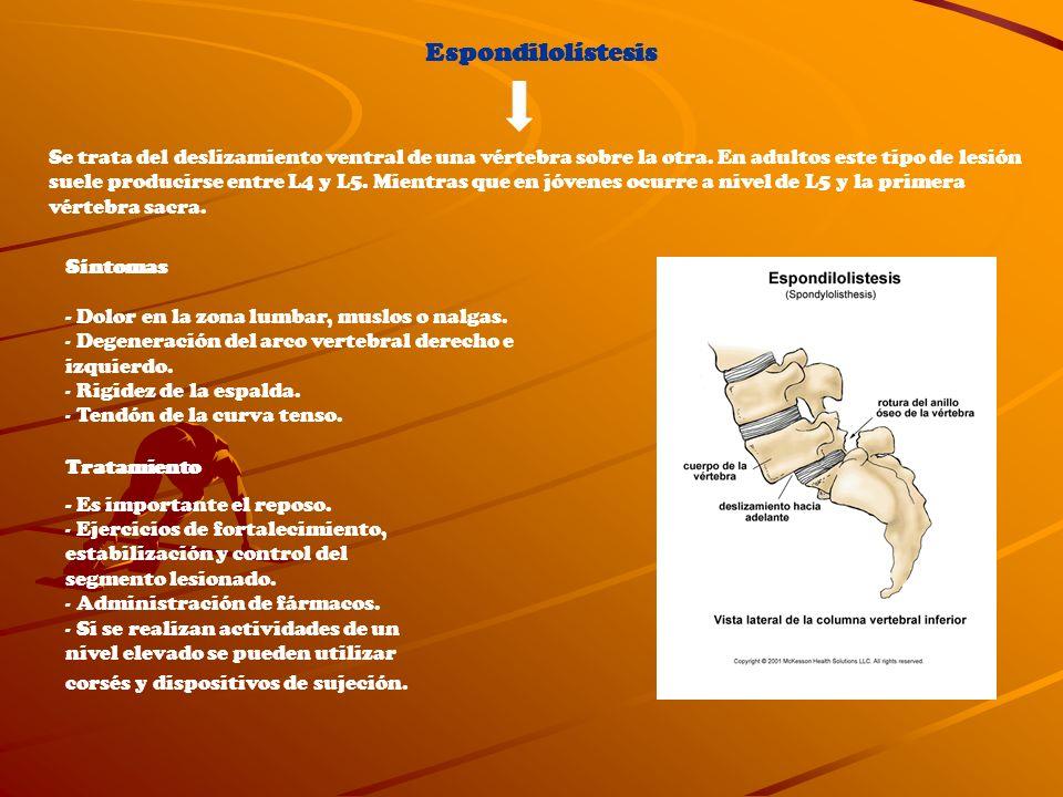 Espondilolístesis Se trata del deslizamiento ventral de una vértebra sobre la otra. En adultos este tipo de lesión suele producirse entre L4 y L5. Mie