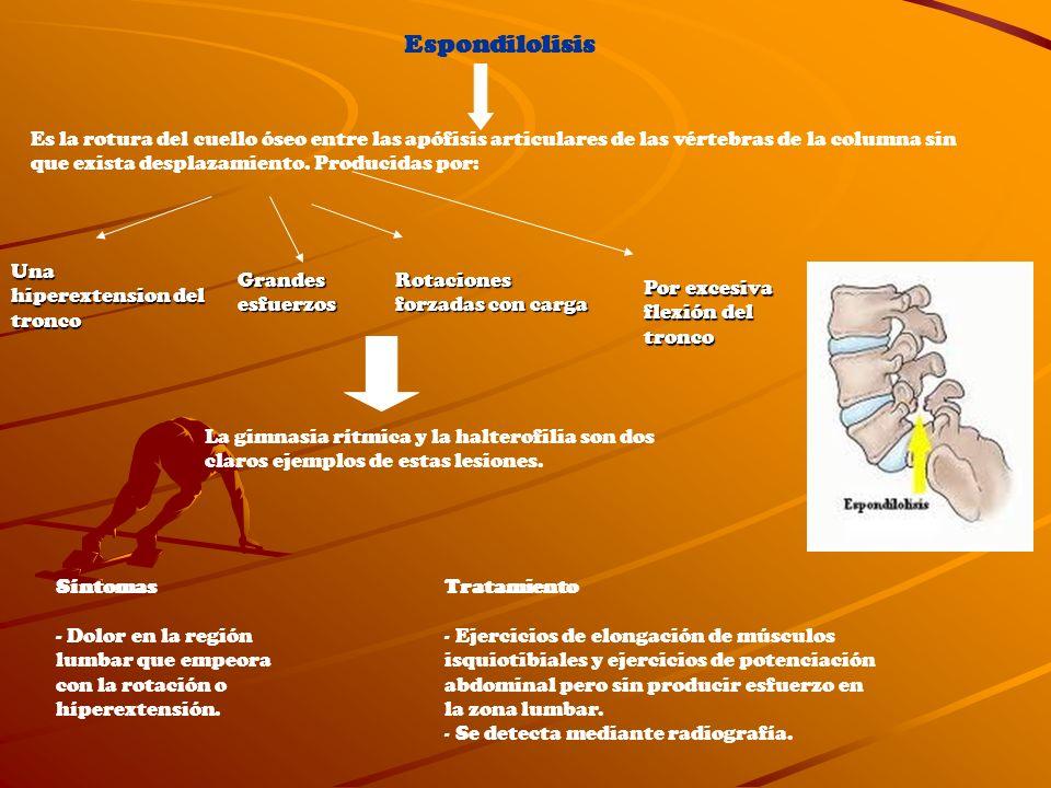 Espondilolisis Es la rotura del cuello óseo entre las apófisis articulares de las vértebras de la columna sin que exista desplazamiento. Producidas po