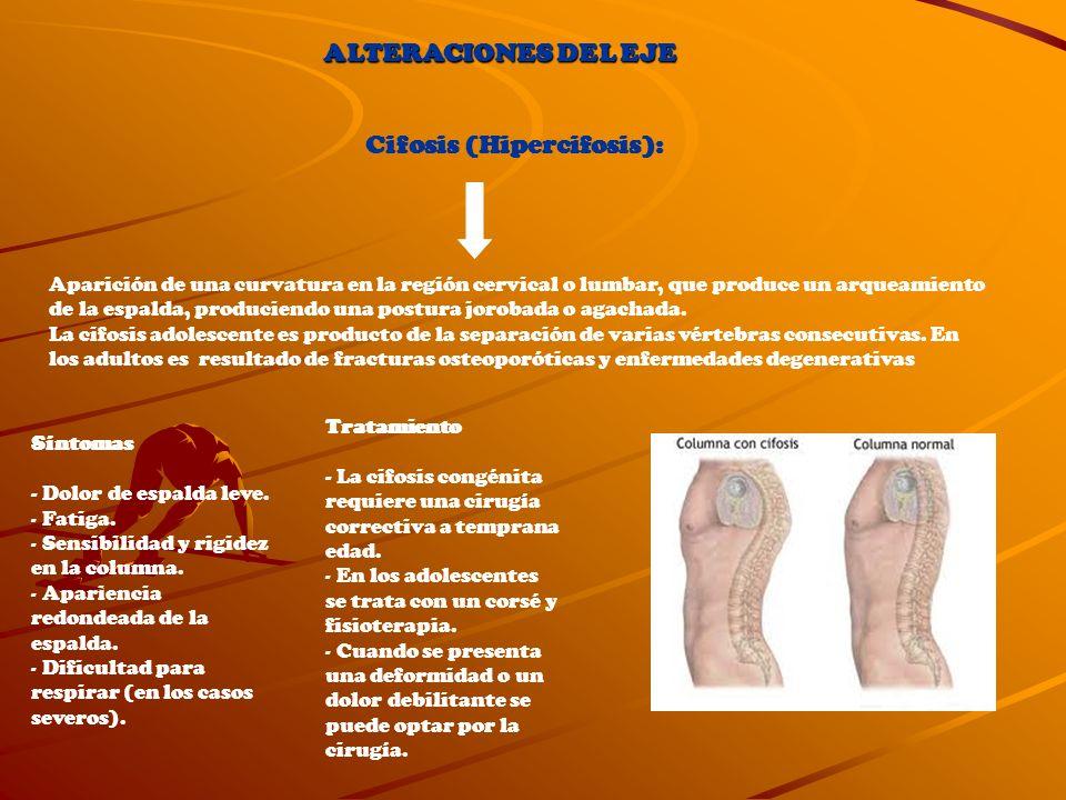 Cifosis (Hipercifosis): Aparición de una curvatura en la región cervical o lumbar, que produce un arqueamiento de la espalda, produciendo una postura