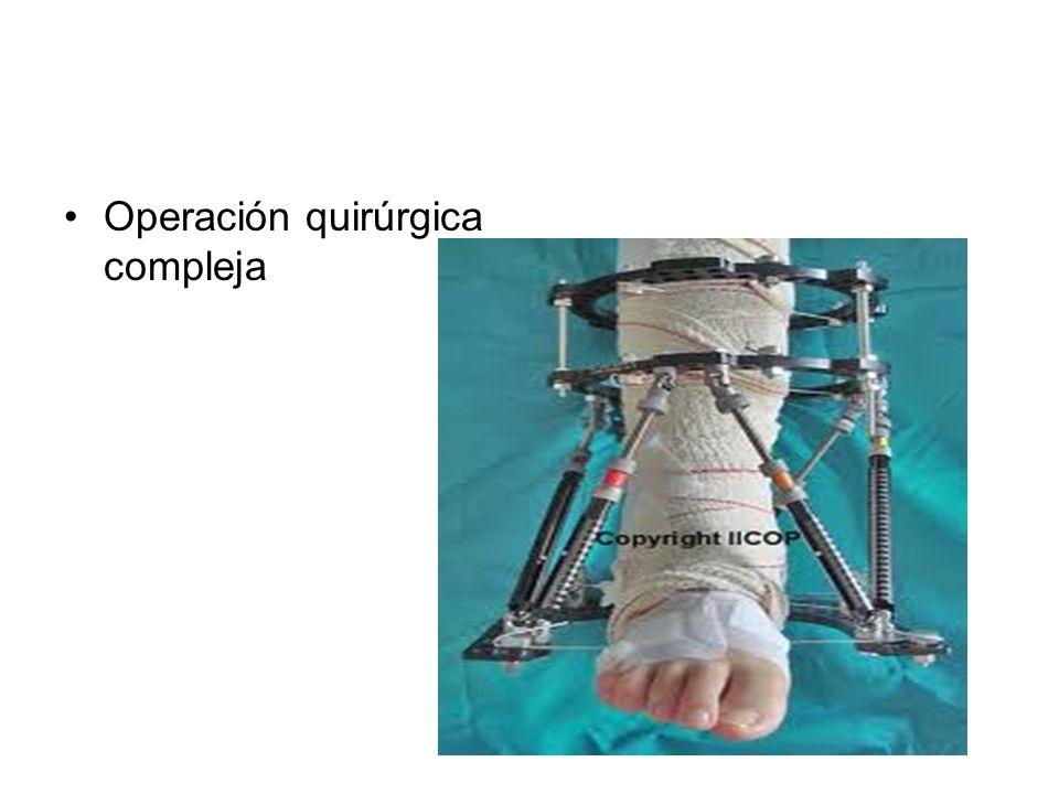 Operación quirúrgica compleja