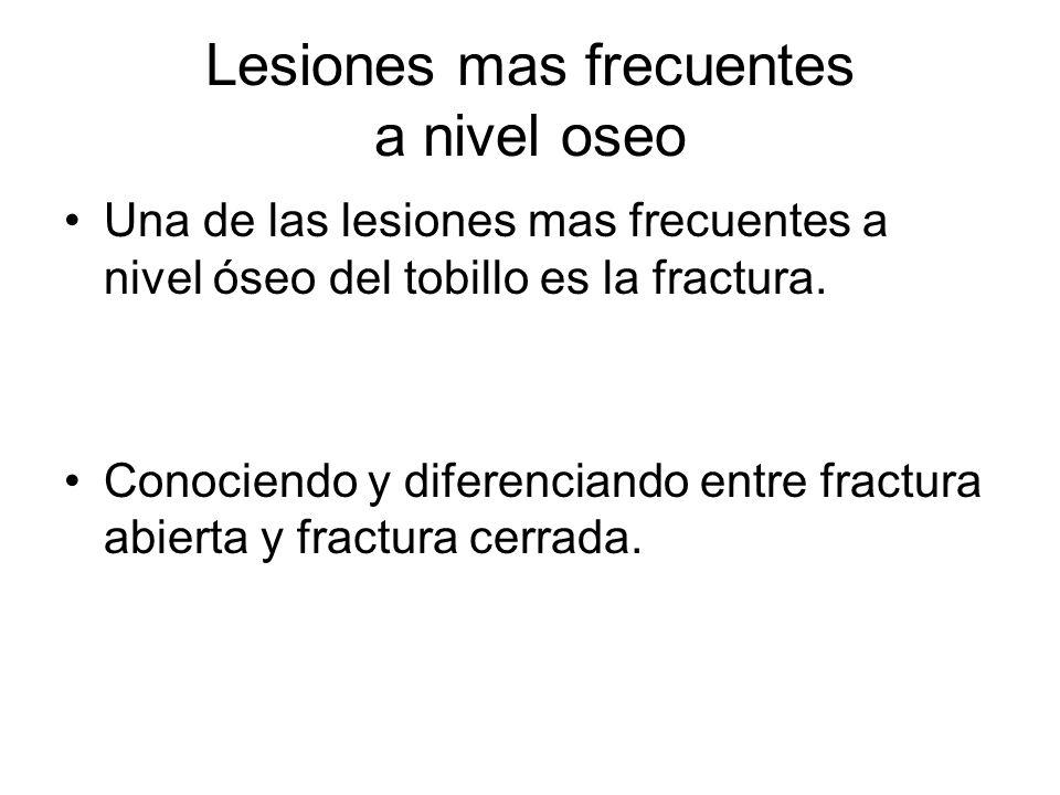 Lesiones mas frecuentes a nivel oseo Una de las lesiones mas frecuentes a nivel óseo del tobillo es la fractura. Conociendo y diferenciando entre frac
