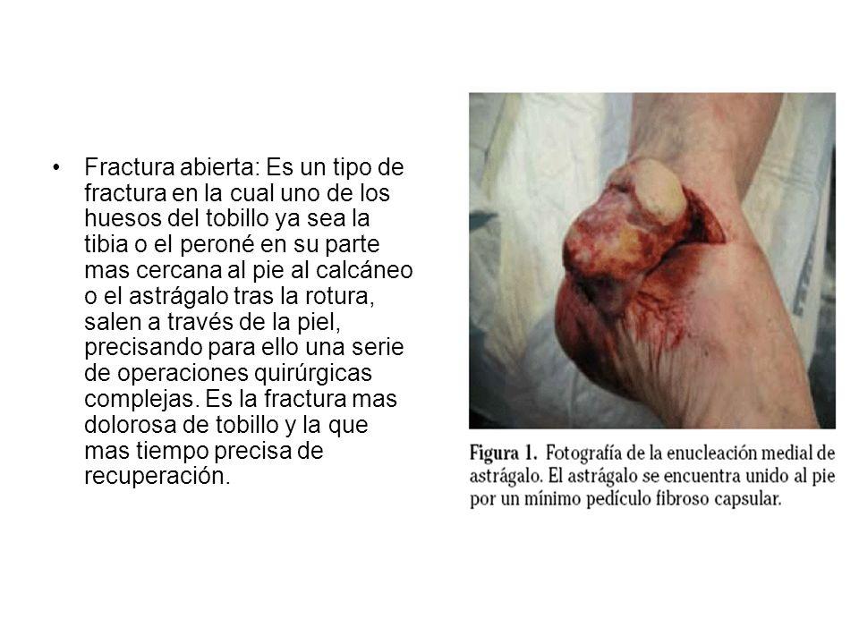 Fractura abierta: Es un tipo de fractura en la cual uno de los huesos del tobillo ya sea la tibia o el peroné en su parte mas cercana al pie al calcán