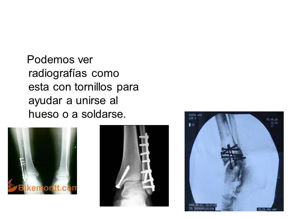 Podemos ver radiografías como esta con tornillos para ayudar a unirse al hueso o a soldarse.