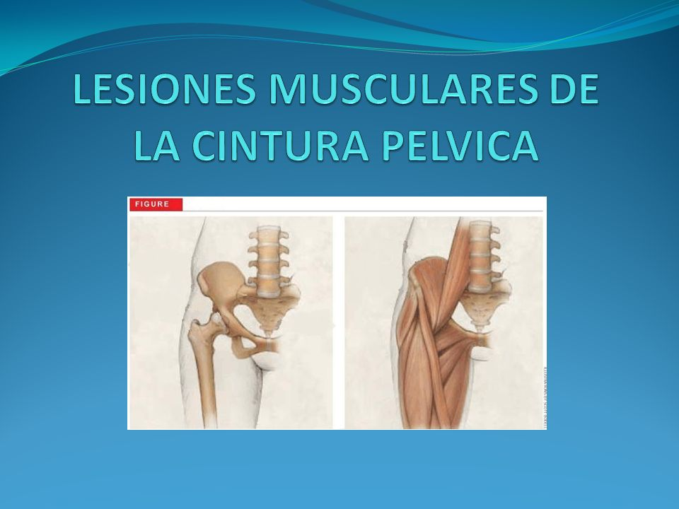 TRATAMIENTO DE LA ROTURA El tratamiento de estas lesiones obliga al reposo deportivo durante un periodo no menor de 6 meses.