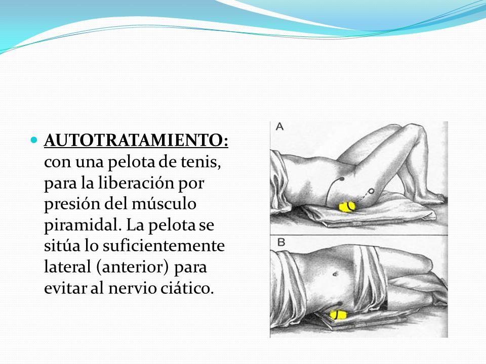 AUTOTRATAMIENTO: con una pelota de tenis, para la liberación por presión del músculo piramidal. La pelota se sitúa lo suficientemente lateral (anterio