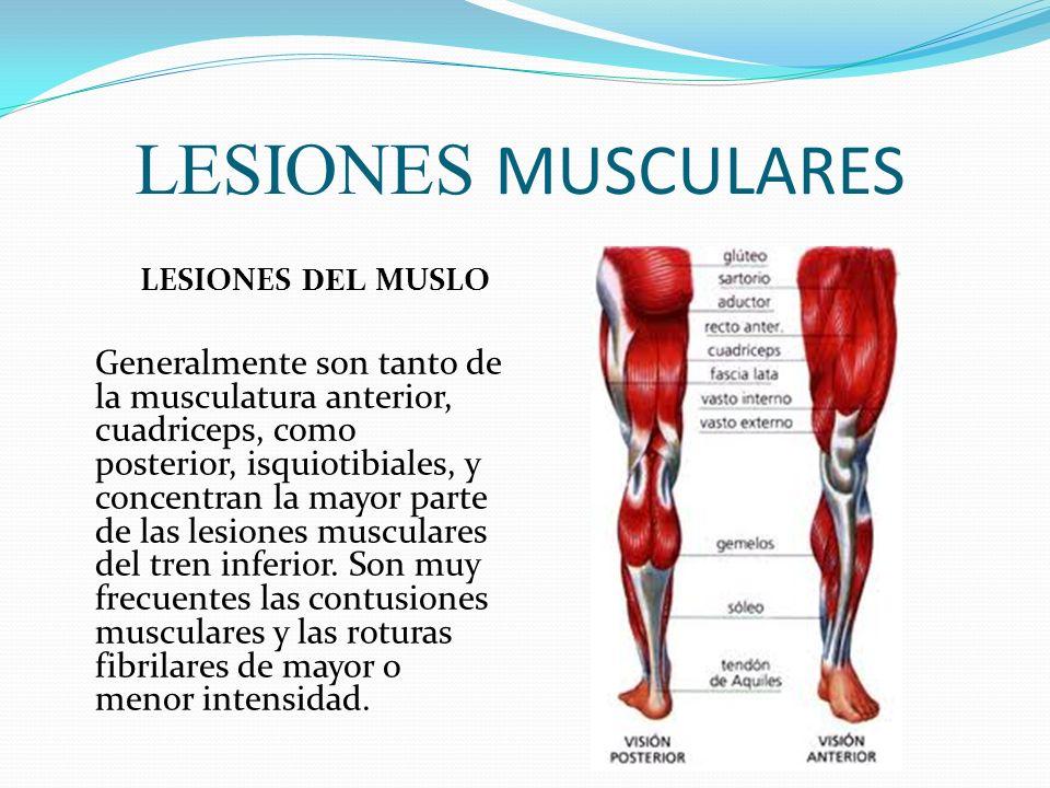 LESIONES MUSCULARES LESIONES DEL MUSLO Generalmente son tanto de la musculatura anterior, cuadriceps, como posterior, isquiotibiales, y concentran la