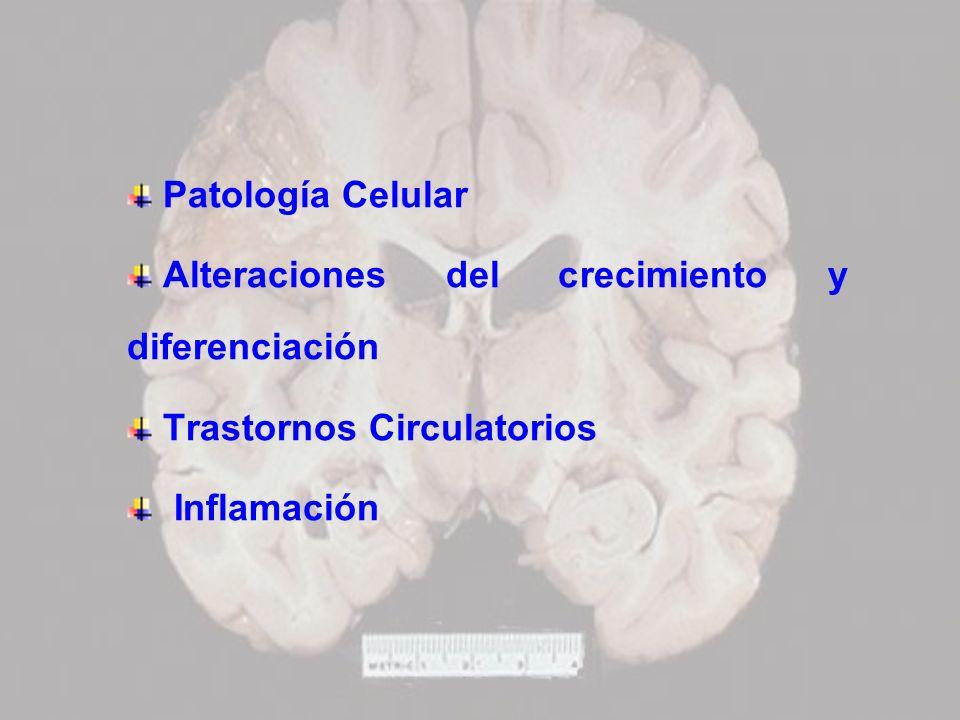 Patología Celular Alteraciones del crecimiento y diferenciación Trastornos Circulatorios Inflamación