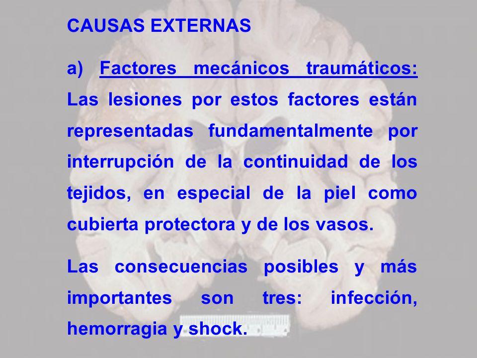 CAUSAS EXTERNAS a) Factores mecánicos traumáticos: Las lesiones por estos factores están representadas fundamentalmente por interrupción de la continu