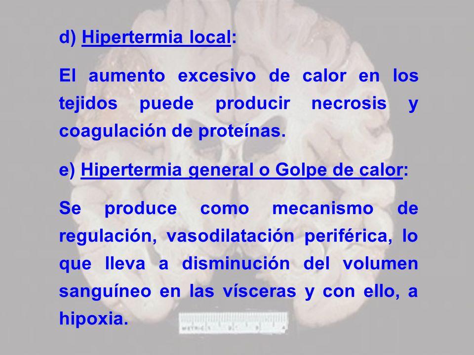 d) Hipertermia local: El aumento excesivo de calor en los tejidos puede producir necrosis y coagulación de proteínas. e) Hipertermia general o Golpe d