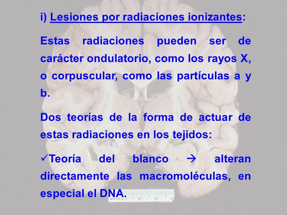 i) Lesiones por radiaciones ionizantes: Estas radiaciones pueden ser de carácter ondulatorio, como los rayos X, o corpuscular, como las partículas a y