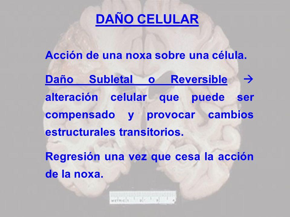 DAÑO CELULAR Acción de una noxa sobre una célula. Daño Subletal o Reversible Daño Subletal o Reversible alteración celular que puede ser compensado y
