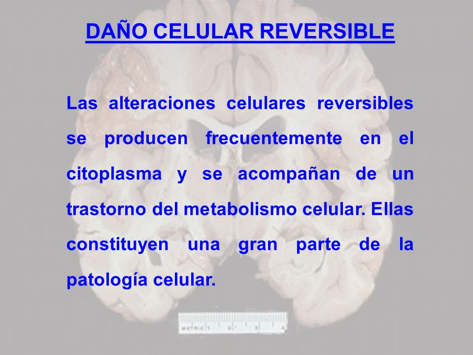 DAÑO CELULAR REVERSIBLE Las alteraciones celulares reversibles se producen frecuentemente en el citoplasma y se acompañan de un trastorno del metaboli