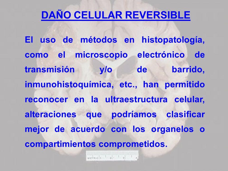 DAÑO CELULAR REVERSIBLE El uso de métodos en histopatología, como el microscopio electrónico de transmisión y/o de barrido, inmunohistoquímica, etc.,