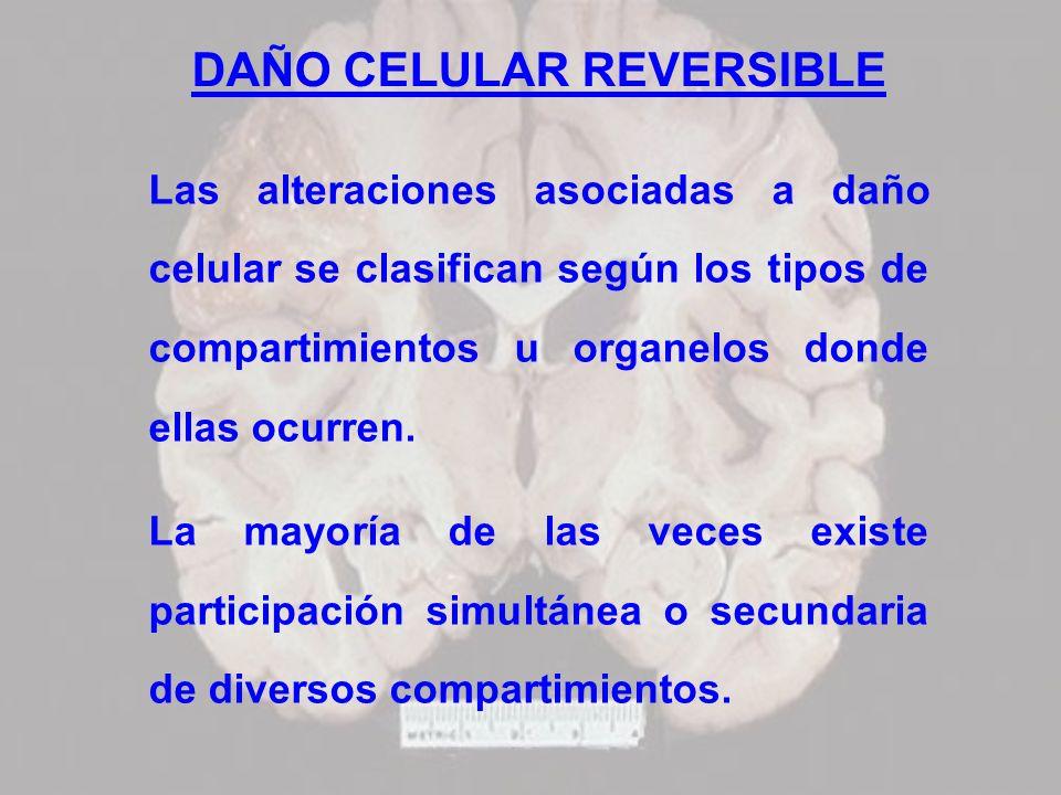 DAÑO CELULAR REVERSIBLE Las alteraciones asociadas a daño celular se clasifican según los tipos de compartimientos u organelos donde ellas ocurren. La