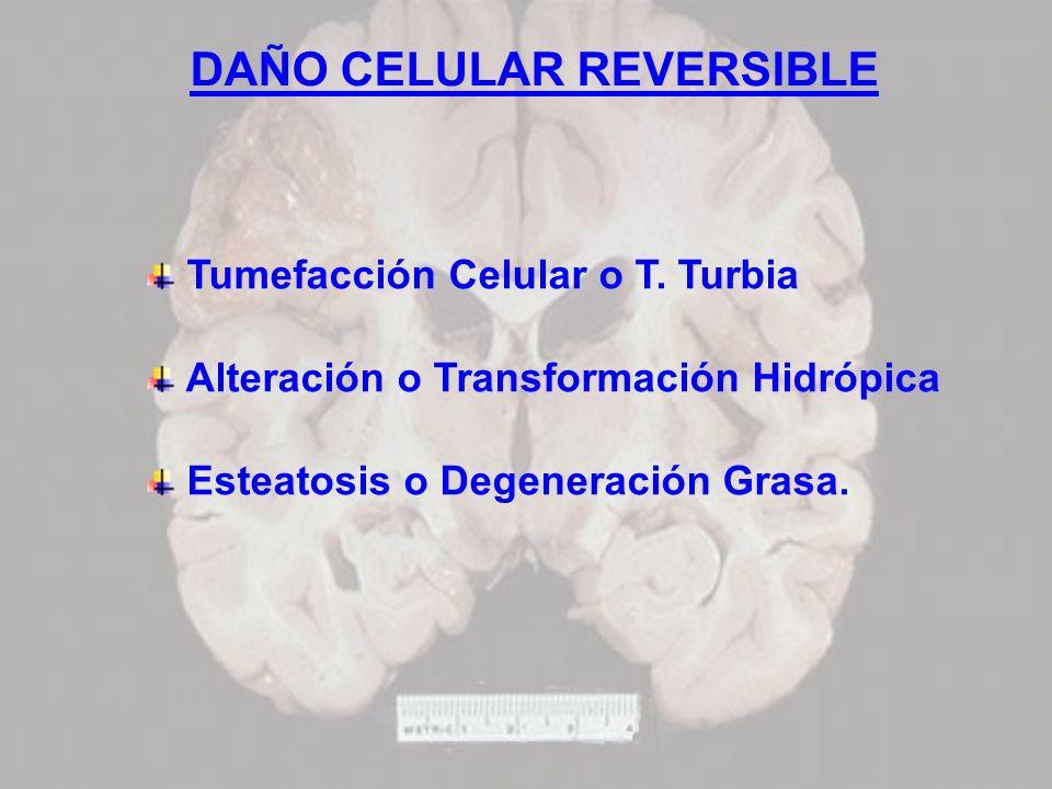 DAÑO CELULAR REVERSIBLE Tumefacción Celular o T. Turbia Alteración o Transformación Hidrópica Esteatosis o Degeneración Grasa.