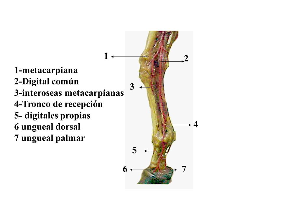 1-metacarpiana 2-Digital común 3-interoseas metacarpianas 4-Tronco de recepción 5- digitales propias 6 ungueal dorsal 7 ungueal palmar 1 2 3 4 5 67