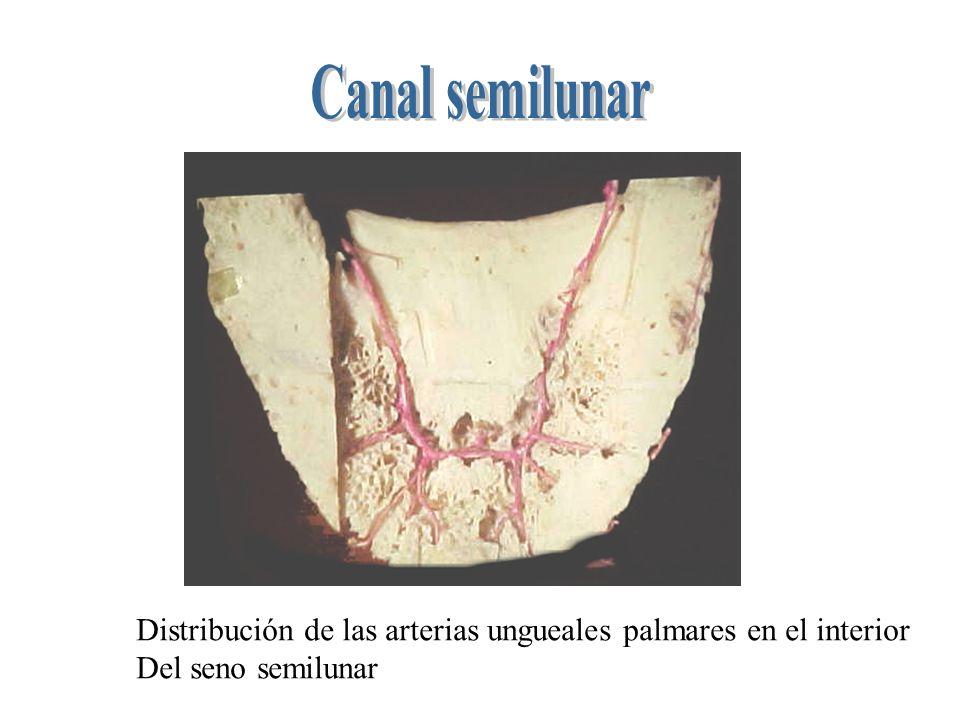 Distribución de las arterias ungueales palmares en el interior Del seno semilunar