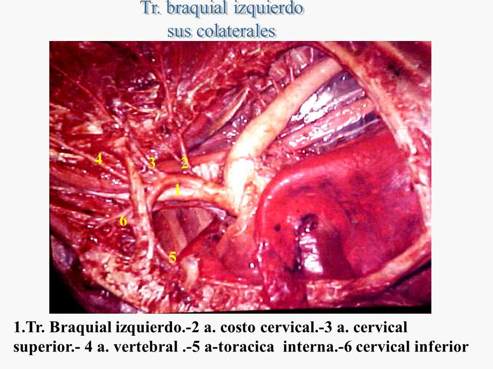 23 4 5 6 1 1.Tr. Braquial izquierdo.-2 a. costo cervical.-3 a. cervical superior.- 4 a. vertebral.-5 a-toracica interna.-6 cervical inferior