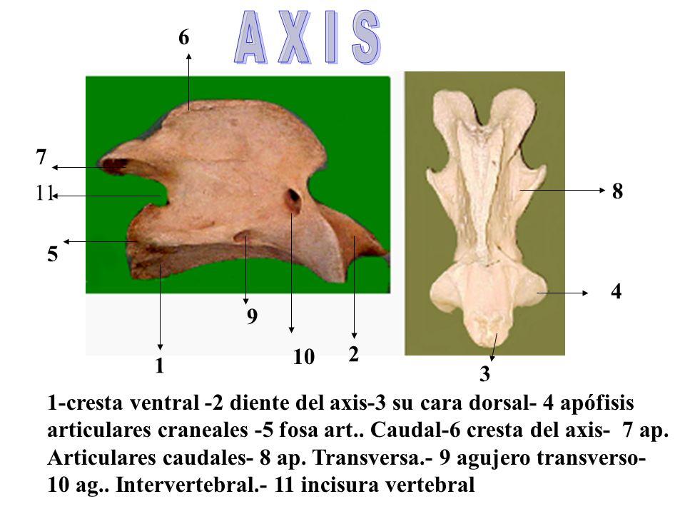 1 2 3 4 5 7 6 8 9 10 1-cresta ventral -2 diente del axis-3 su cara dorsal- 4 apófisis articulares craneales -5 fosa art..