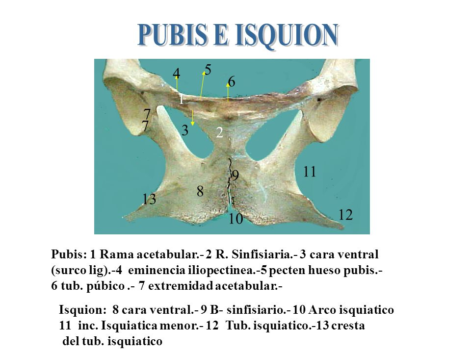 1 2 3 4 5 6 7 1.-b. Craneal.-2 b. Lateral.-3 fosa p/ recto femoral.-4 b- medial (espina iliaca).-5 pars. Ligamentosa.- 6 inc. Isquiatica mayor.- 7 cre