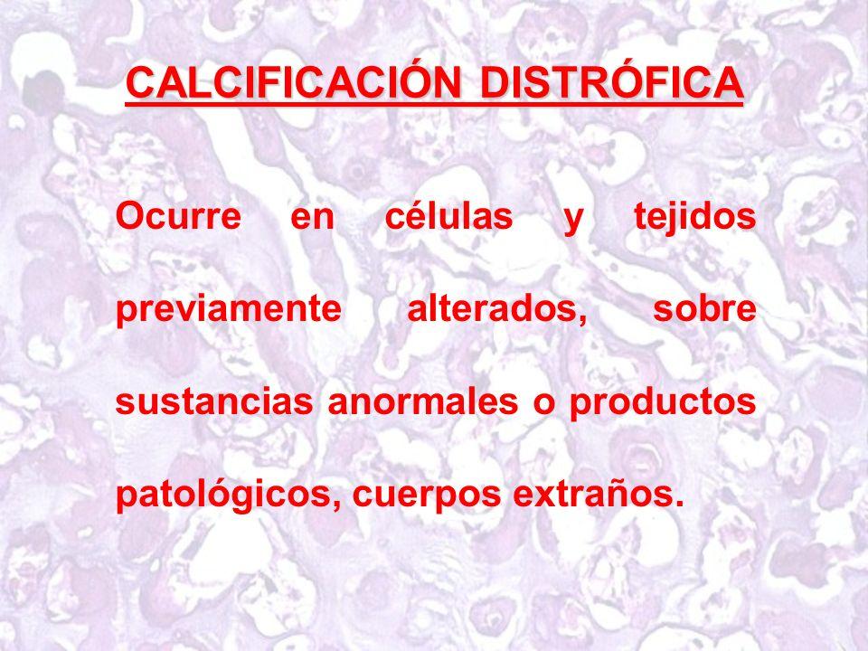 CALCIFICACIÓN DISTRÓFICA Ocurre en células y tejidos previamente alterados, sobre sustancias anormales o productos patológicos, cuerpos extraños.