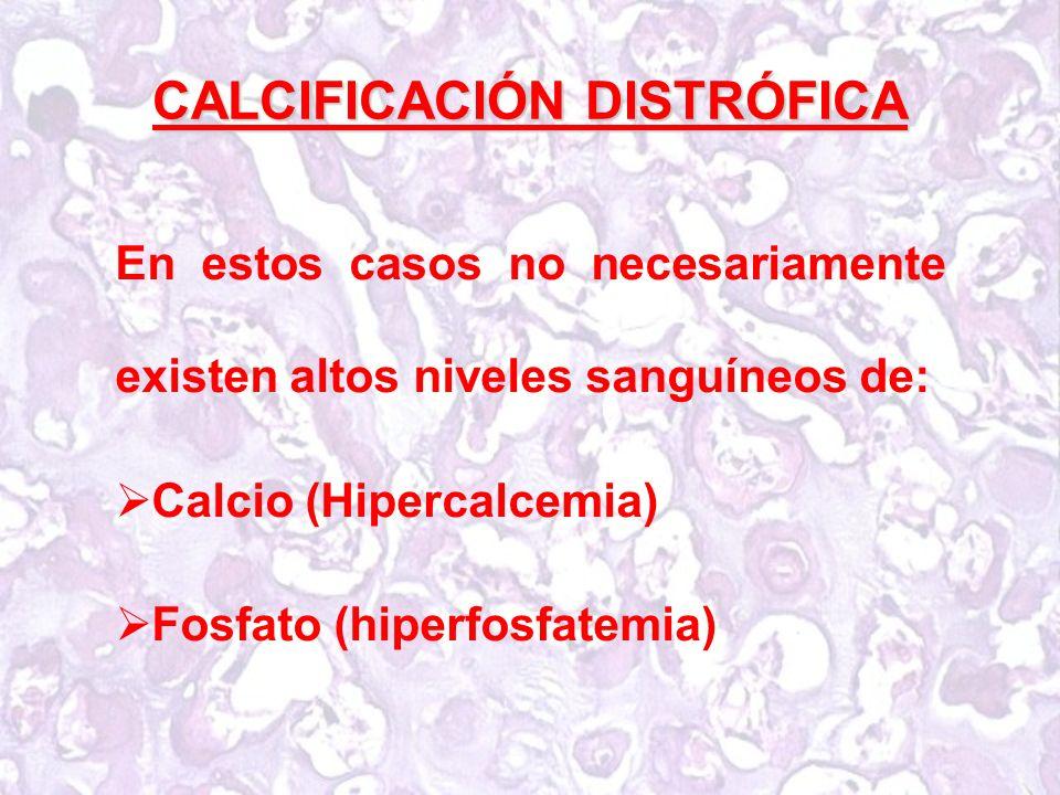 CALCIFICACIÓN DISTRÓFICA En estos casos no necesariamente existen altos niveles sanguíneos de: Calcio (Hipercalcemia) Fosfato (hiperfosfatemia)