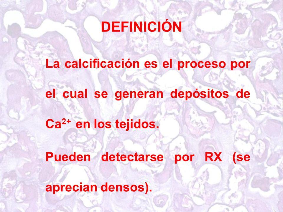 DEFINICIÓN La calcificación es el proceso por el cual se generan depósitos de Ca 2+ en los tejidos.