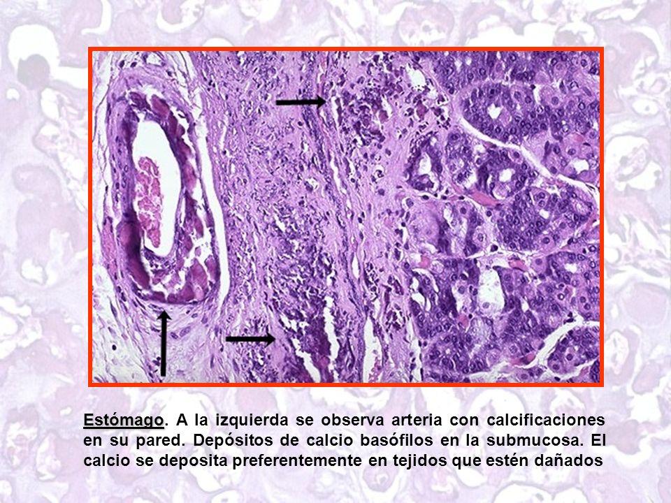 Estómago Estómago.A la izquierda se observa arteria con calcificaciones en su pared.