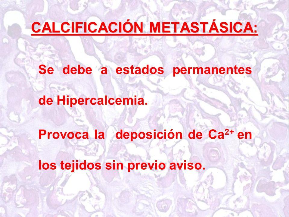 CALCIFICACIÓN METASTÁSICA: Se debe a estados permanentes de Hipercalcemia.