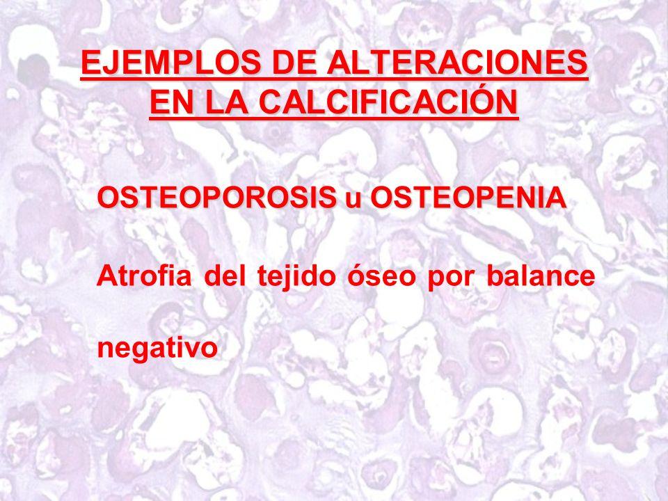 EJEMPLOS DE ALTERACIONES EN LA CALCIFICACIÓN OSTEOPOROSIS u OSTEOPENIA Atrofia del tejido óseo por balance negativo
