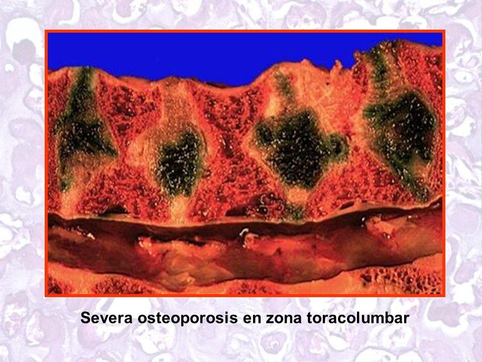Severa osteoporosis en zona toracolumbar