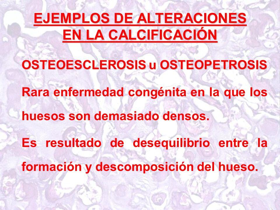 EJEMPLOS DE ALTERACIONES EN LA CALCIFICACIÓN OSTEOESCLEROSIS u OSTEOPETROSIS Rara enfermedad congénita en la que los huesos son demasiado densos.