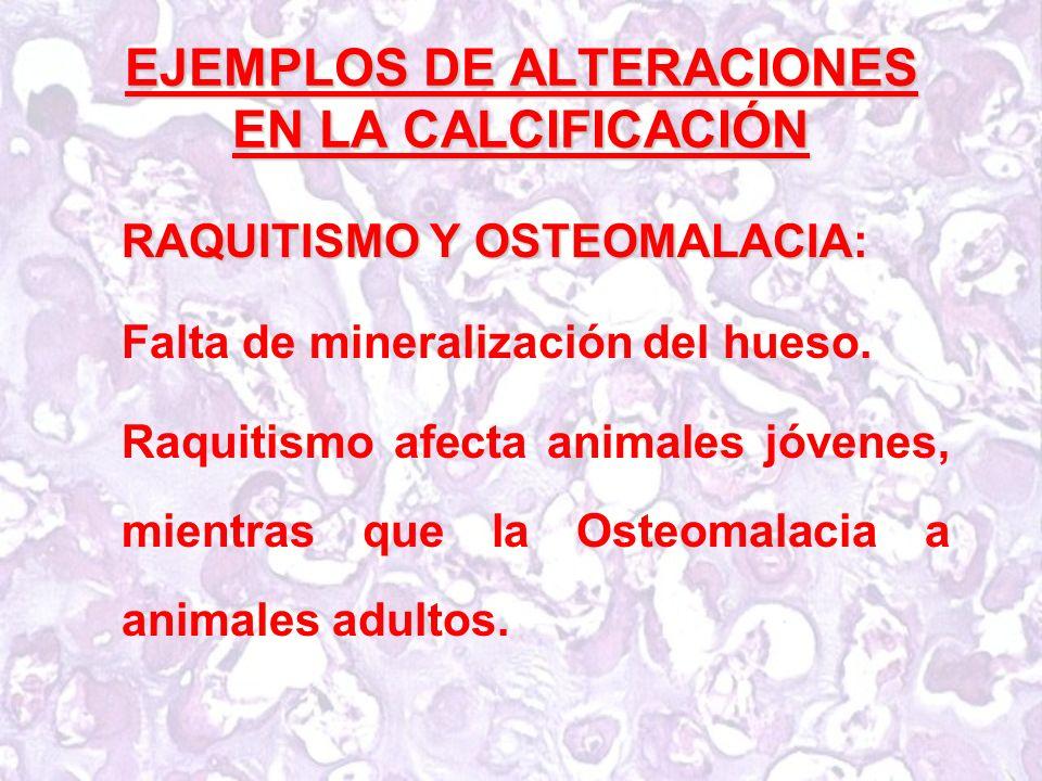 EJEMPLOS DE ALTERACIONES EN LA CALCIFICACIÓN RAQUITISMO Y OSTEOMALACIA RAQUITISMO Y OSTEOMALACIA: Falta de mineralización del hueso.
