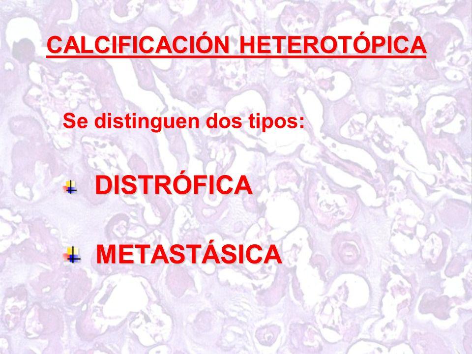 CALCIFICACIÓN HETEROTÓPICA Se distinguen dos tipos: DISTRÓFICA DISTRÓFICA METASTÁSICA METASTÁSICA
